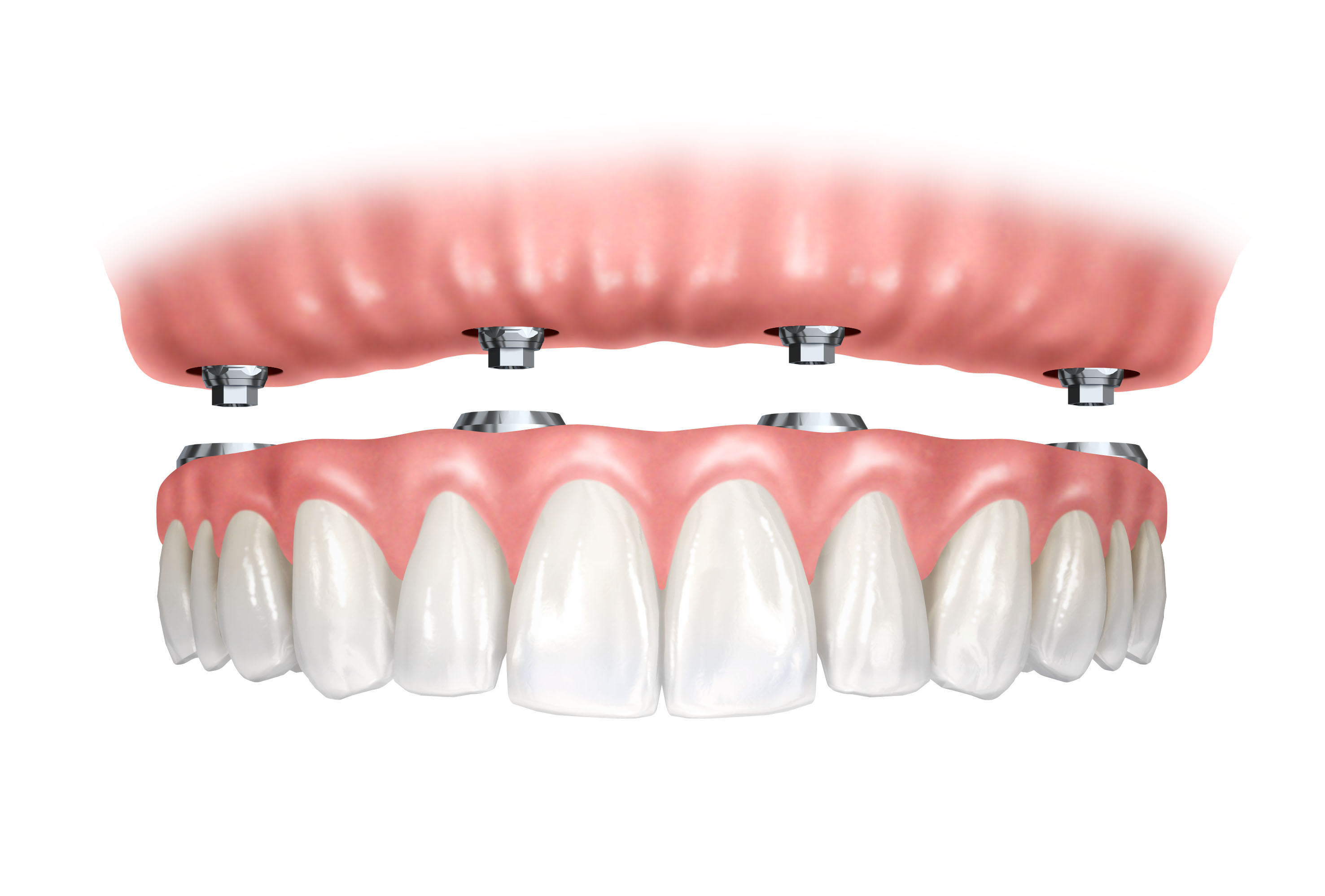 Implant-retained-denture.jpg